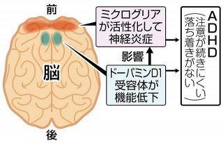 発達障害ADHDの原因 脳受容体と炎症が関係